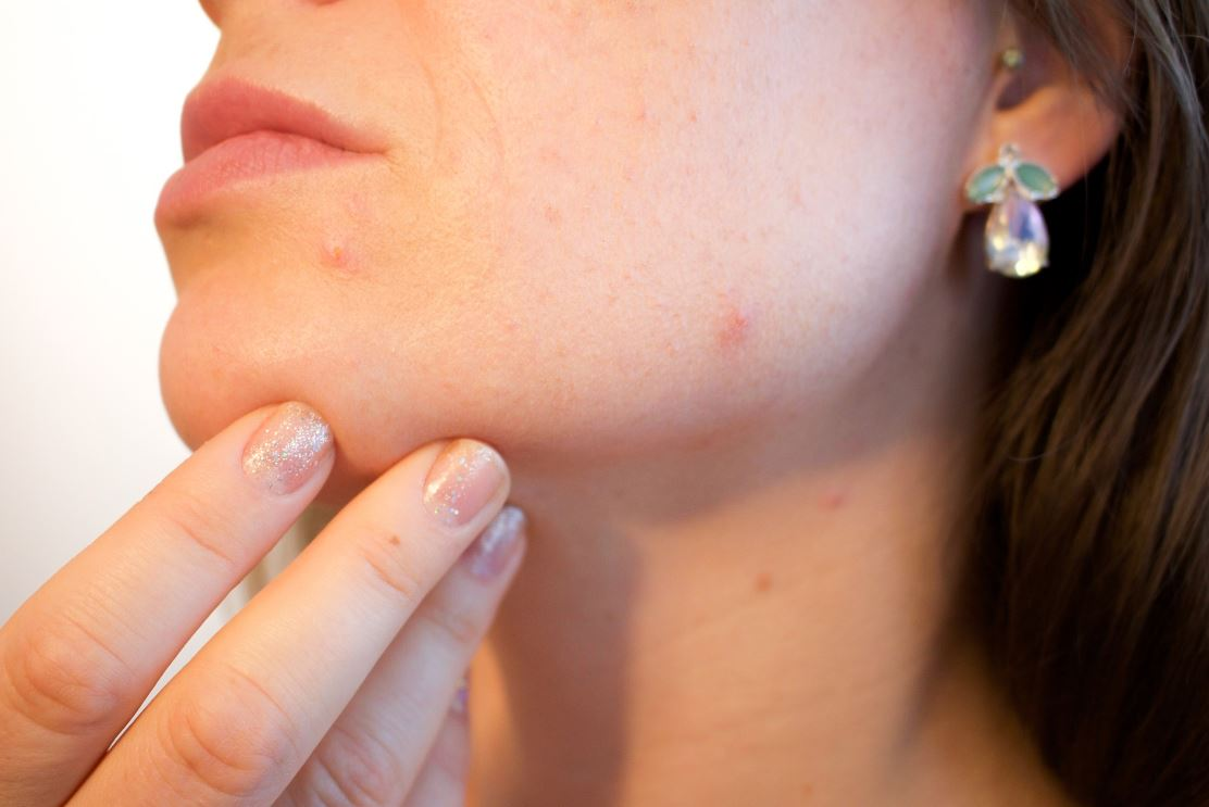 article how to get rid of pimples naturally